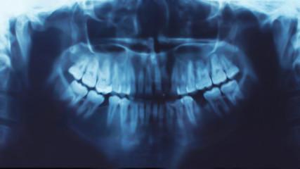 X-ray of teeth, stomatology concept