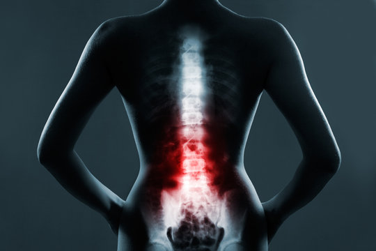 The lumbar spine is highlighted by red colour