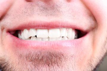 Smiling man after visit dentist om blurred background, macro