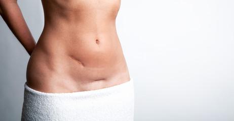 Bauch einer attraktiven Frau mit Narben
