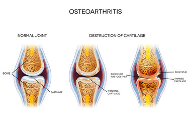 Osteoarthritis, destruction of cartilage