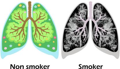 Non smoker - smoker