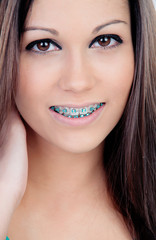 Beautiful portrait of a young girl with brackets