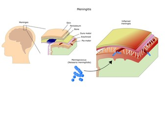 Meningitis: inflammation of the brain by bacteria, virus, fungi