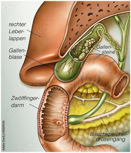 Gallensteine.Gallenblase\