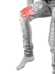 Female having sprain problems, holding her painful leg.