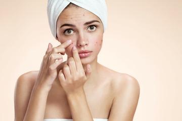 Acne spot pimple spot skincare beauty care girl