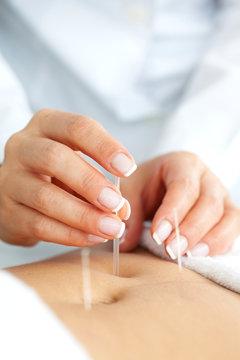 Acercamiento de las manos de una doctora llevando a cabo un tratamiento de acupuntura en el abdomen de una paciente