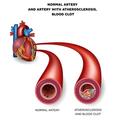 Normal artery and unhealthy artery with blood clot