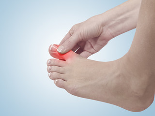 Painful and inflamed foot around the big toe area.