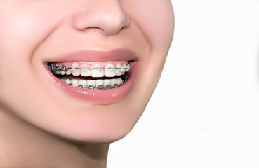 Ceramic Dental Braces Teeth. Closeup Female Smile.