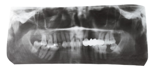 dental X-ray picture of human teeth isolated