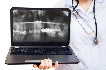 nurse holds computer laptop with human jaw