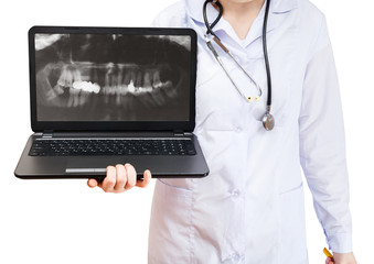 nurse holds computer laptop with human teeth