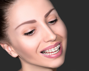 Beautiful Female Smiling Face with Ceramic Braces on Teeth