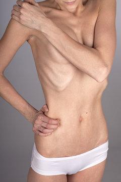 Magersüchtige Frau, halbnackt, Oberkörper, Bauch