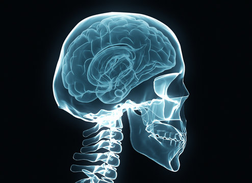 X-ray brain and skeleton on black background