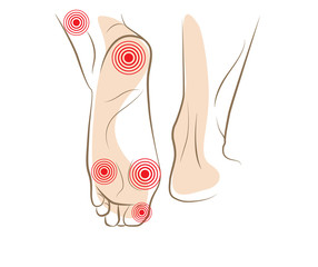 Concept of woman foot pain, vector