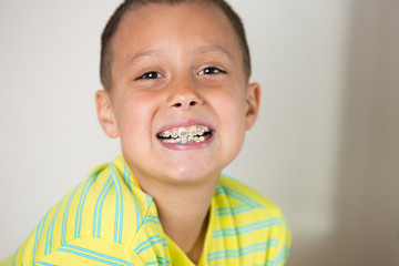 Boy showing his braces on his teeth.