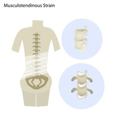 Illustration of Musculotendinous Strain or Lumbar Spine