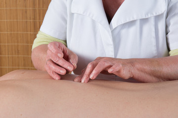 Acupuncturist prepares to tap needle into patients skin