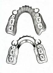 Mandibular removable partial dentures