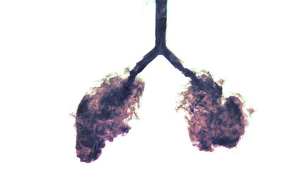 x-ray shot of smoke in lungs