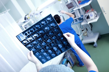 Heart scan (CT scan of the chest) in the hands of a doctor in a