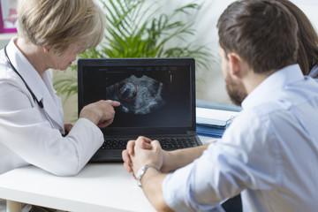 Showing fetus ultrasound