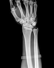 X-ray of human hand and wrist.