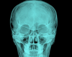 Front face skull in x-ray image