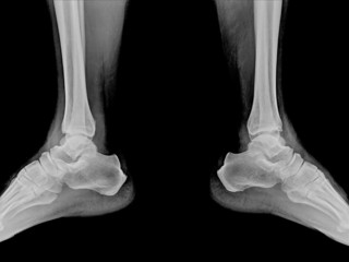 X-ray of 2 foot on black background