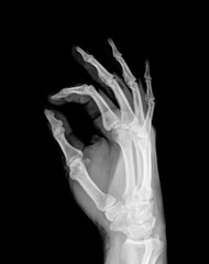 X-ray of both human hand (OK!)