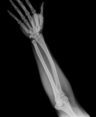 Hand x-ray view on a black background