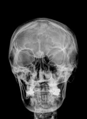 X-ray of the skull of the head