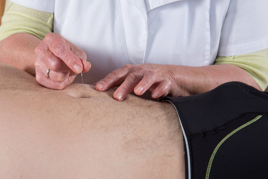 Acupuncturist prepares to tap needle on the belly of a man