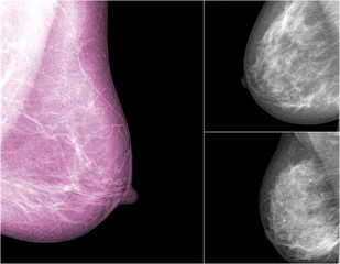 collection of Mammogram radio imaging for breast cancer
