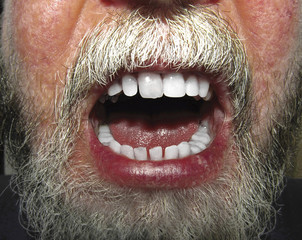 Close up of face with beard and open mouth showing teeth and lip