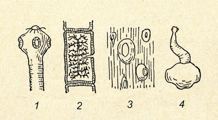 Tapeworm: scolex(1), gravid proglottid(2), cysticerci in muscles(3), cysticerk(4)