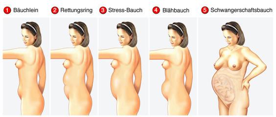 Verschiedene Bauchtypen bei Frauen