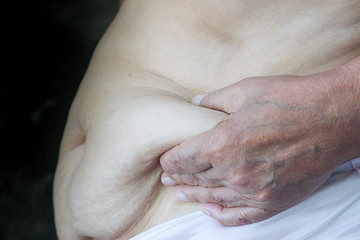 Older women with fat belly and hand withered