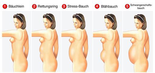 Unterschiedliche Bauchformen