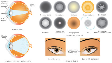 Eye disease cataract