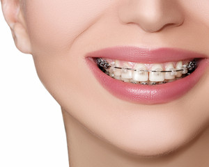 Teeth with Braces, Dental Care concept, front view.