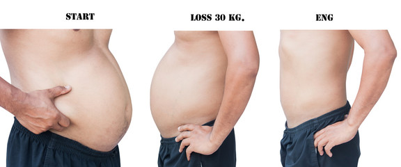 body of fat man between three step before and after weight loss 30 kilogram