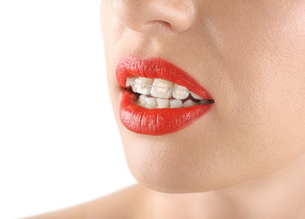 Teeth alignment. Braces. Beautiful woman smiling. Red lips.