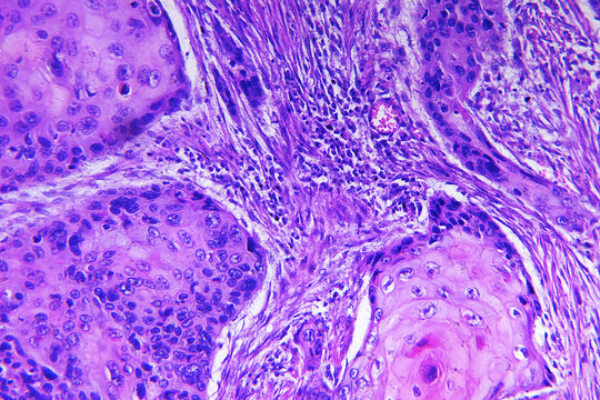 Squamous cell carcinoma of a human