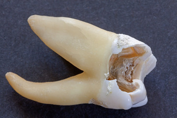 Extracted molar.