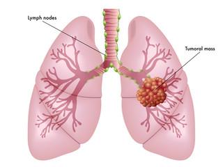cancro del polmone