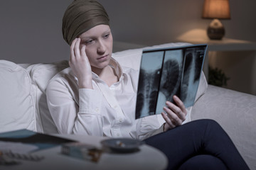 Worried woman and xray